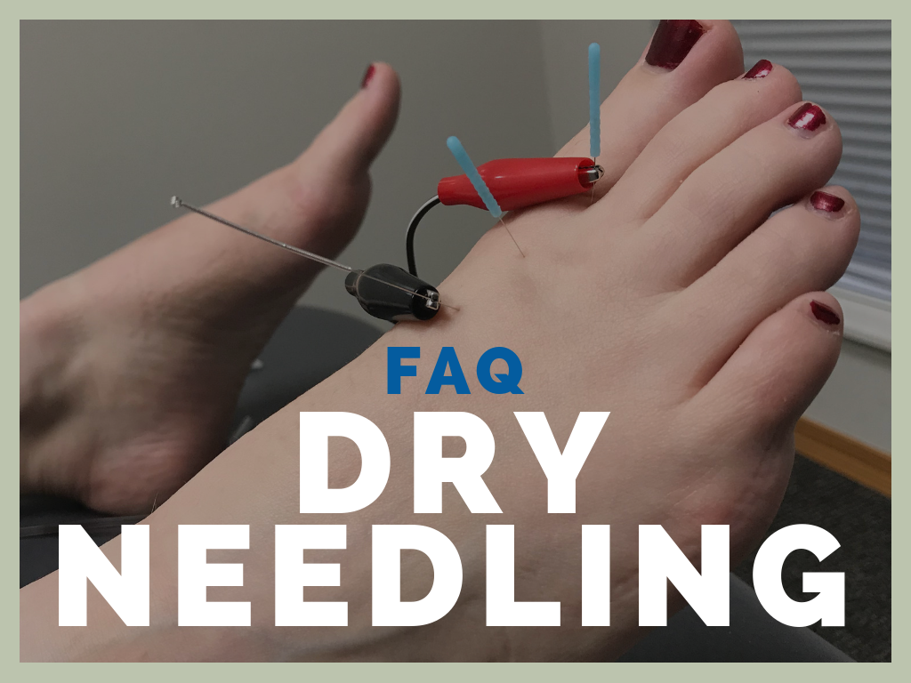 FAQ: Dry Needling