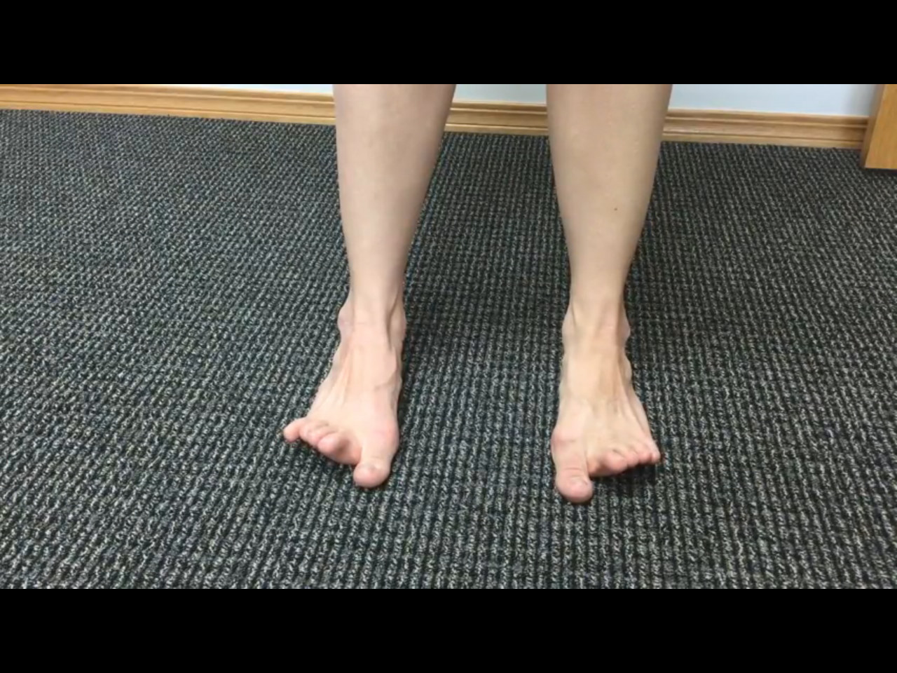 Can you Wiggle your Toes Correctly?