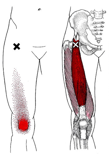 rectus femoris referral pattern