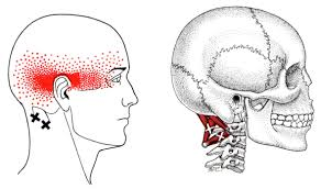 suboccipital trigger point referral