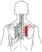 trigger points rhomboids